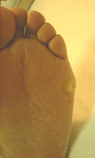 Pictures of Bunion and Call Us